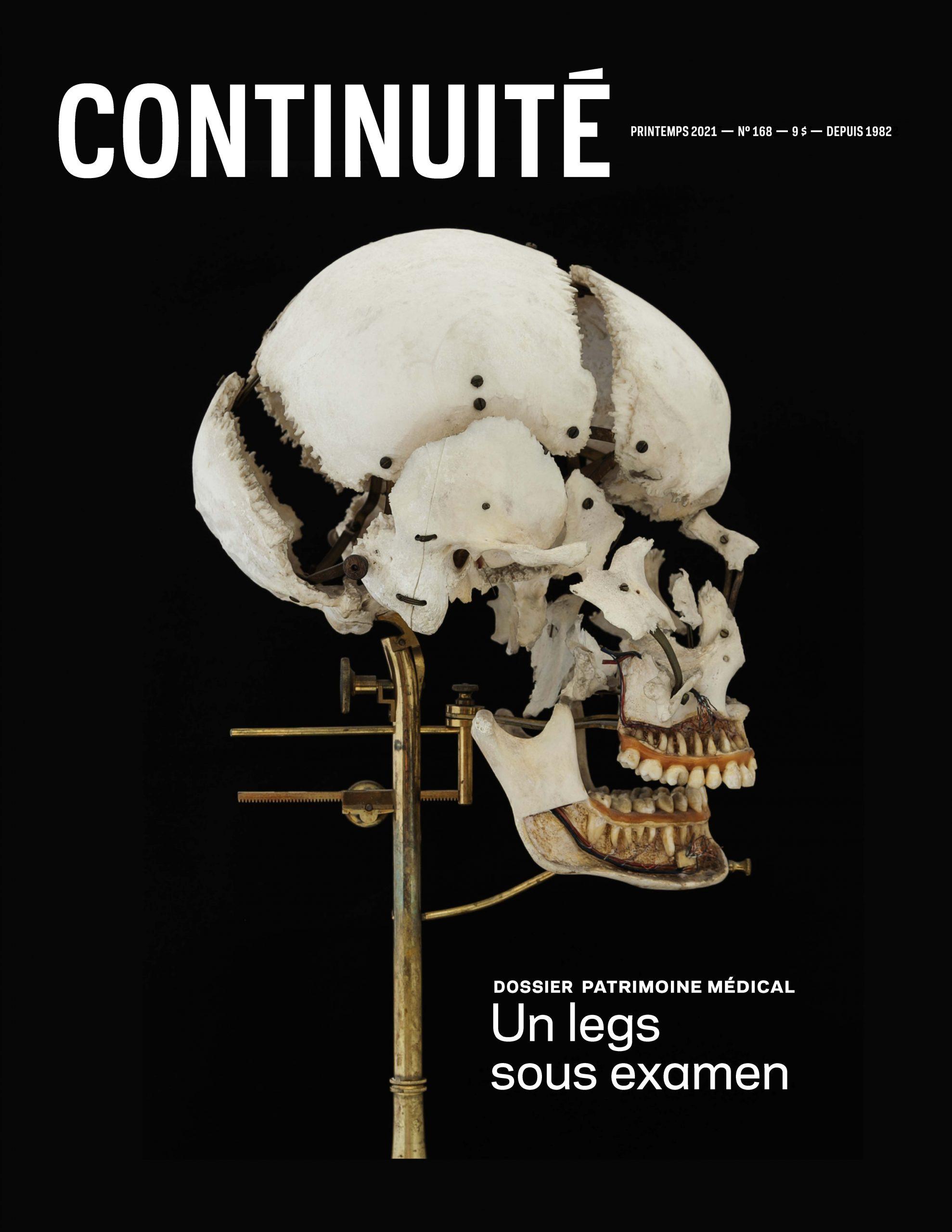 Ce crâne éclaté dit « à la Beauchêne » fait partie des collections du Musée médical Maude Abbott (voir « Conserver la santé »).